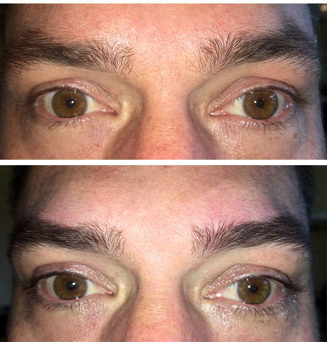Drew's brows (and lashes!) before and after the BroBrows treatment.