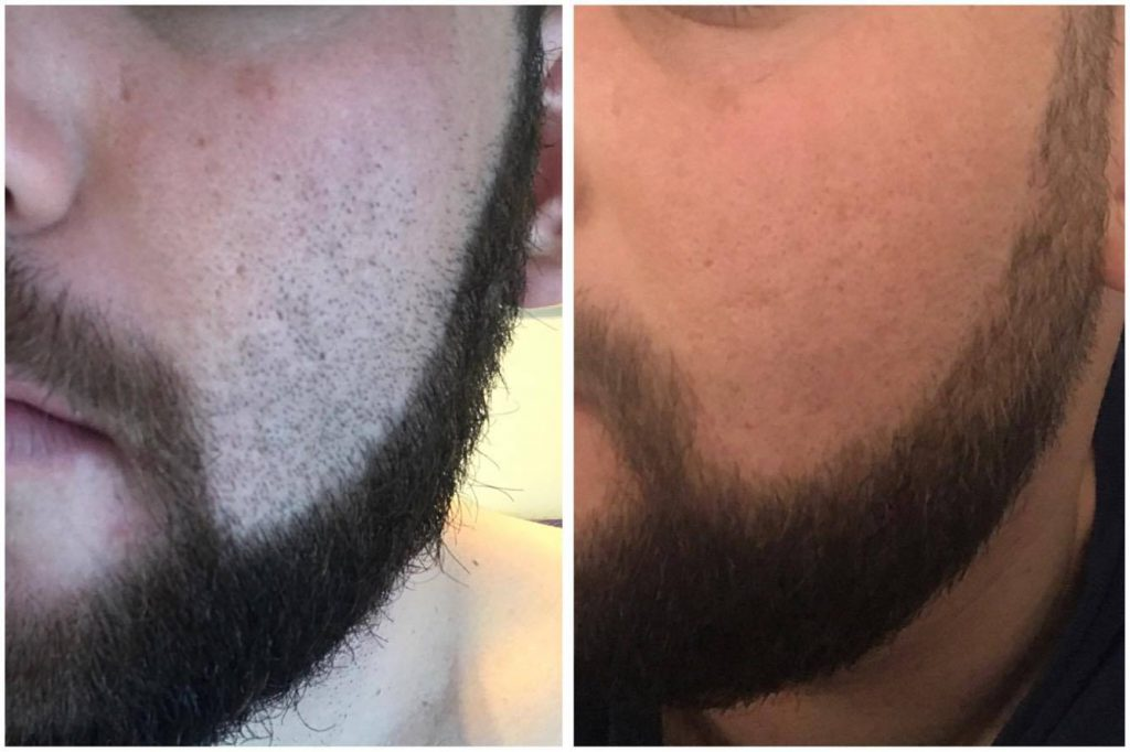 Left: 24 Hours after shaving before the treatment. Right: After three treatments.