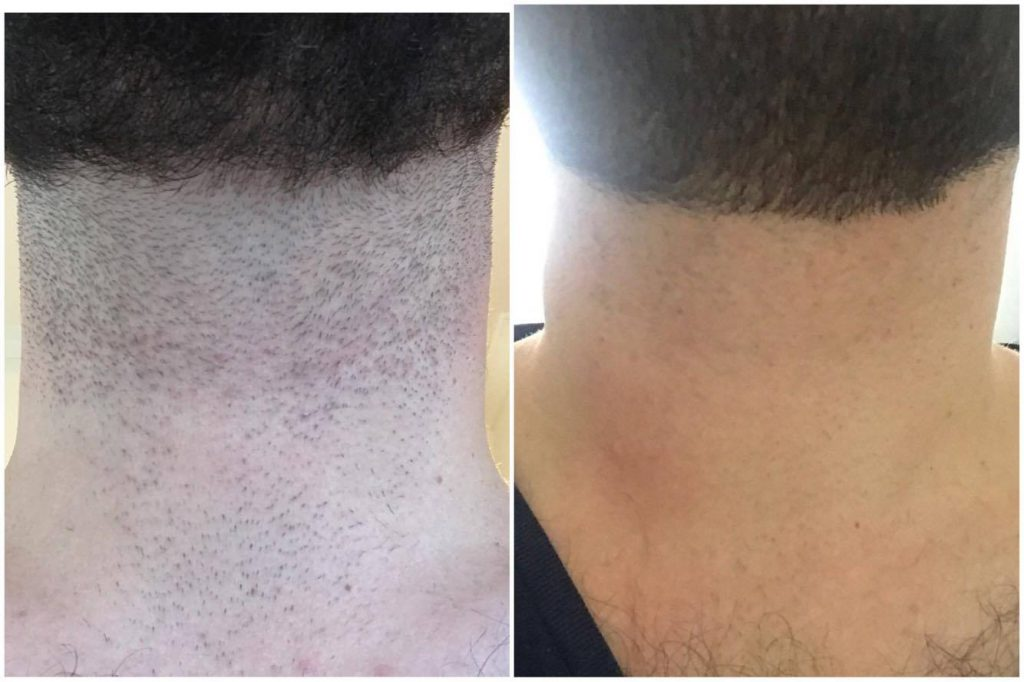 Left: 24 Hours after shaving before the treatment. Right: After three treatments