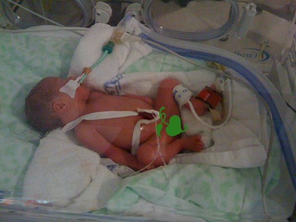 Sophia was born weighing just 1.43kg.