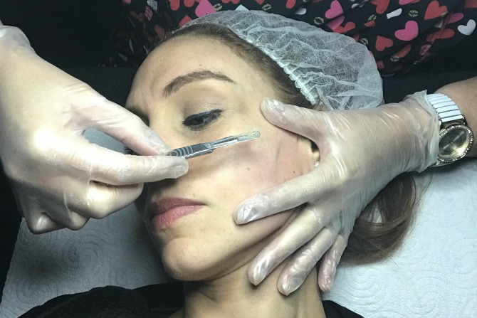 Dermaplaning: the results are in