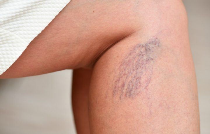 Got varicose veins? They're easier to treat than you think