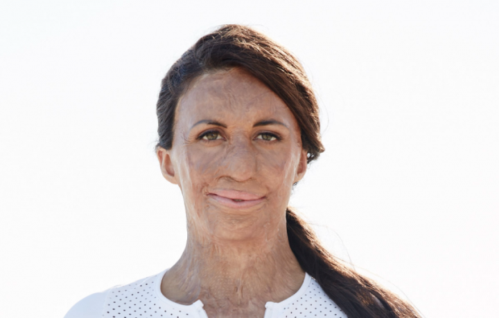 Next week, Turia Pitt will speak in Canberra about doing the impossible