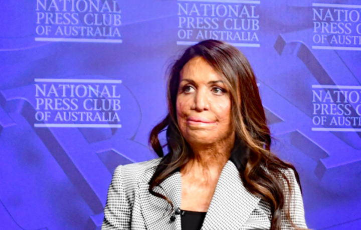 Turia Pitt: How to rewrite your own story